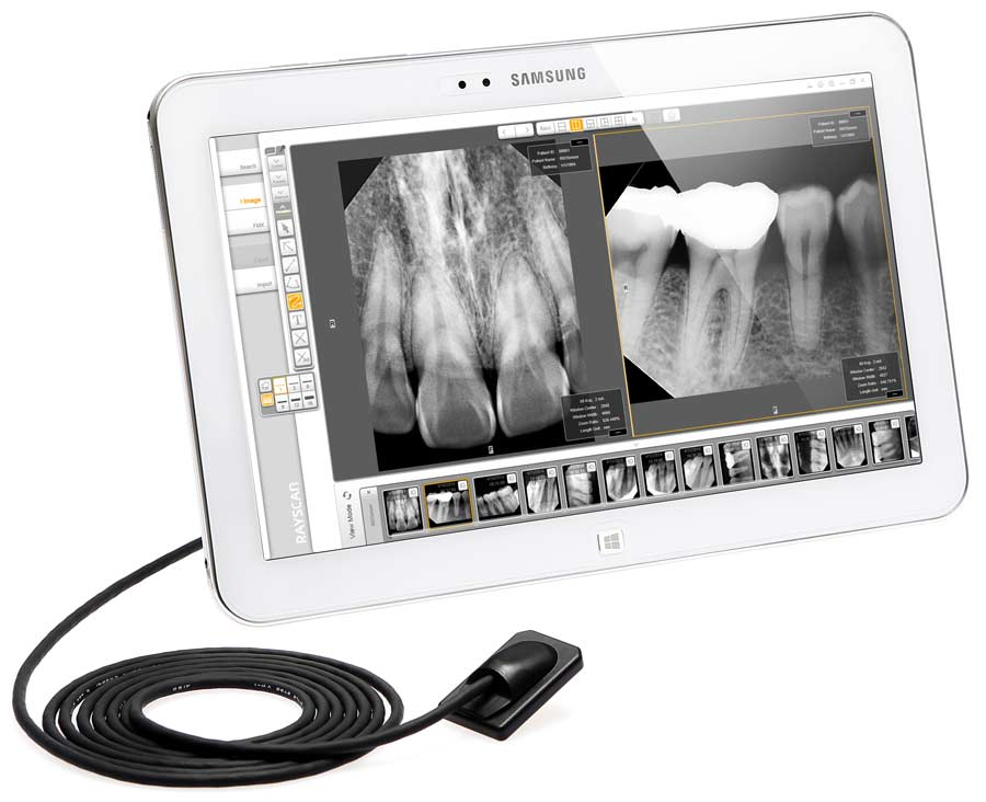 NEW RioSensor Intraoral Radiography System from Ray Medical