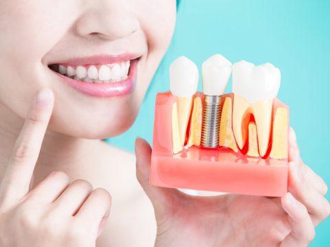 always-innovating-dental-depot-implantmed-thumbnail